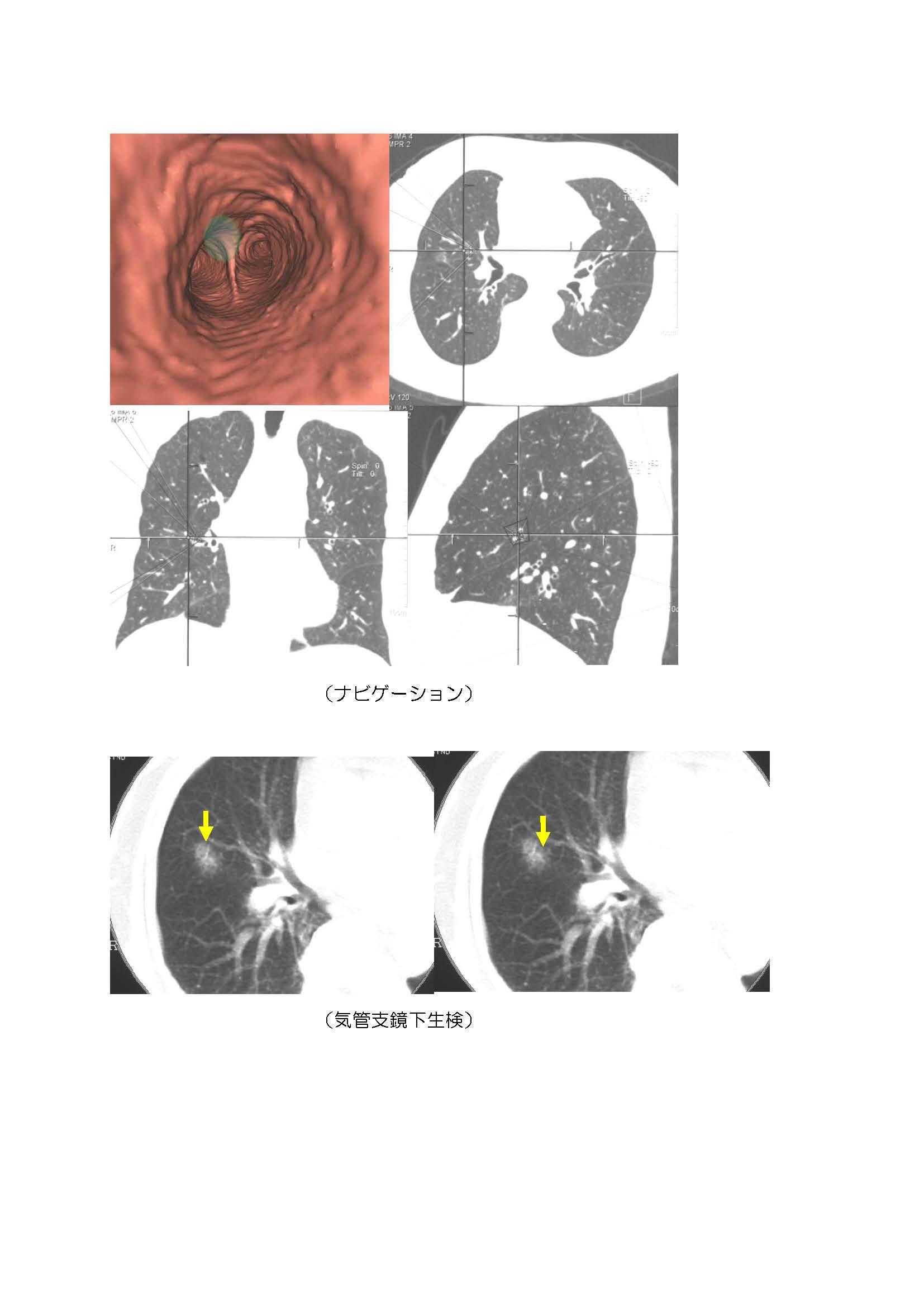 (33-2)気管支鏡肺がん診断.jpg