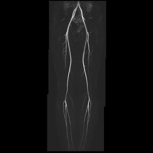 下肢動脈.jpg