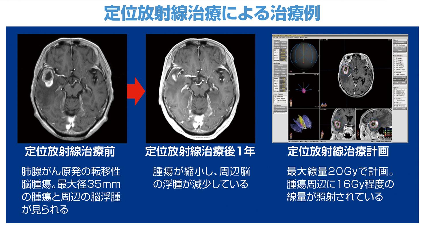 定位放射線治療.jpg