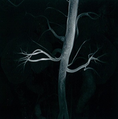 腎動脈.jpg