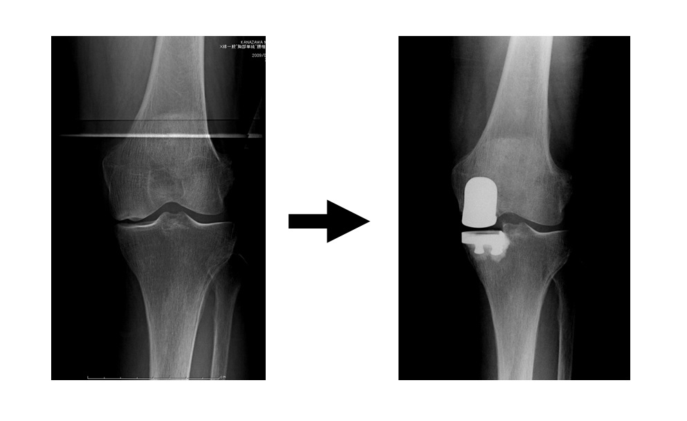単顆型人工膝関節置換術画像.jpg