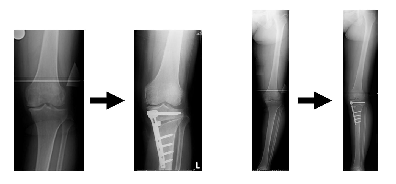 高位脛骨骨切り術画像.jpg
