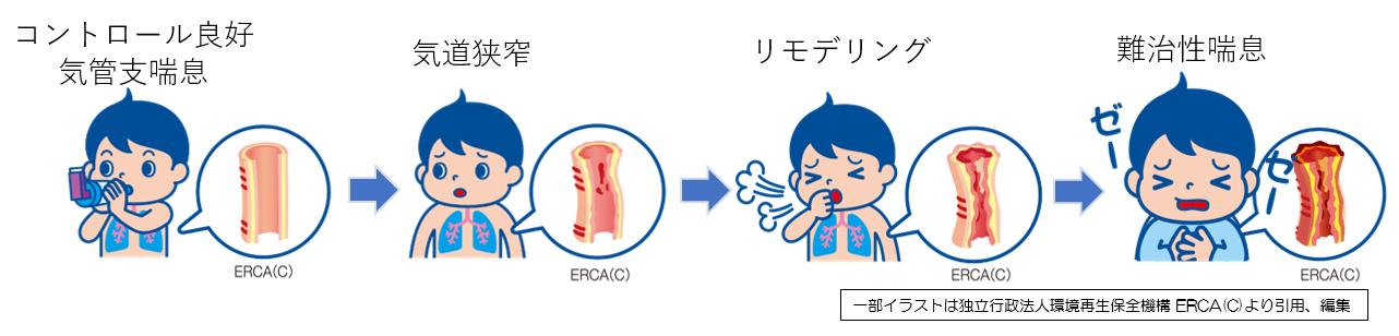 気管支喘息②治療①.png